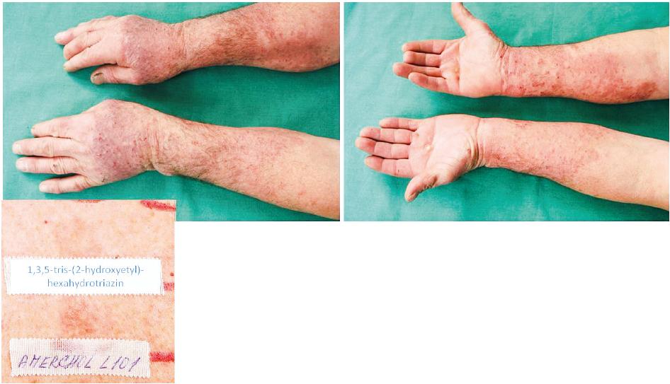Eczema contactum prof. – 1,3,5-tris(2-hydroxyetyl)-hexahydrotriazin 1%+++, Amerchol L101++ (průmyslové kapaliny), nikl+, benzalkonium chlorid+++, kokamidopropylbetain++, extr. Chamomillae+++ (kosmetické přípravky), rtuť++ – obráběč kovů a dělník v galvanovně