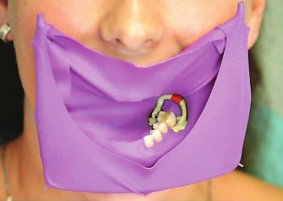 Kofferdam aplikovaný do dutiny ústní<br> Fig. 1 Rubber dam placed in oral cavity