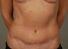 Obr. 4b Pacientka 4 roky po operaci