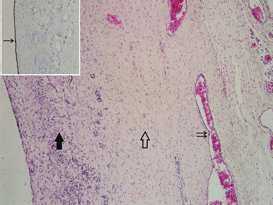 Stěna cysty ductus thoracicus (barvení hematoxylinosin). Patrné podélně (plná šipka) i příčně (prázdná šipka) orientované snopce hladkého svalu v tunica media a v ní se nacházející krevní cévy (dvojšipka). Cysta je kryta velmi plochým, D2-40 pozitivním endotelem (inset, šipka).