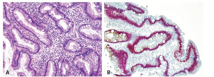 Esophageal incomplete intestinal metaplasia. A. Cylindrical cells with mucin production and without brush border. B. Double immunohistochemical reaction shows nuclear positivity for CDX2 (red) and cytoplasmic expression for MUC5AC (brown). No cell with negativity of CDX2 and positivity of MUC5AC is seen (original magnifications 200x).