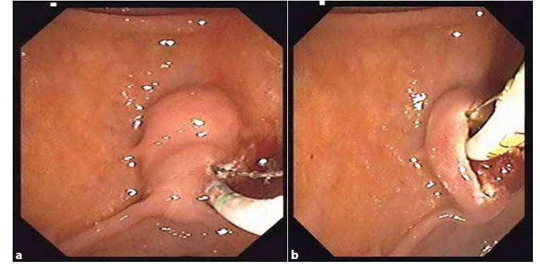 a, 3b: Endoskopická papilosfinkterotomie<br> Fig. 3a, 3b: Endoscopic papilosphincterotomy
