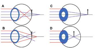 Emetropické oči s 6 mm zornicí a pozitivní (A), negativní (B) sférickou aberací. Periferní paprsky se více lámou jak paraxiální. Stejné oči po akomodativní mióze (C a D). Eliminace periferních paprsků a tím i SA způsobí hypermetropický (C) a myopický (D) posun. V případě B-D tedy dochází ke zlepšenému vidění na bližší vzdálenost.