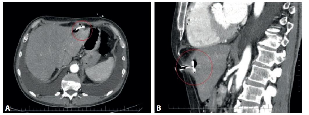 CT vyšetrenie s nálezom dislokovaného PEG a hepatálnym abscesom (červený krúžok):<br> a) axiálna projekcia, b) sagitálna projekcia<br> Fig. 1. CT scan with PEG dislocation and hepatic abscess (red circle):<br> a) axial projection, b) sagittal projection