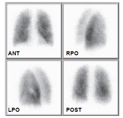 Kontrolní scintigrafie plicní perfuze 31. 3. 2008. Perfuze obou plic je prakticky homogenní, během dvou týdnů došlo k téměř kompletní rekanalizaci embolů.