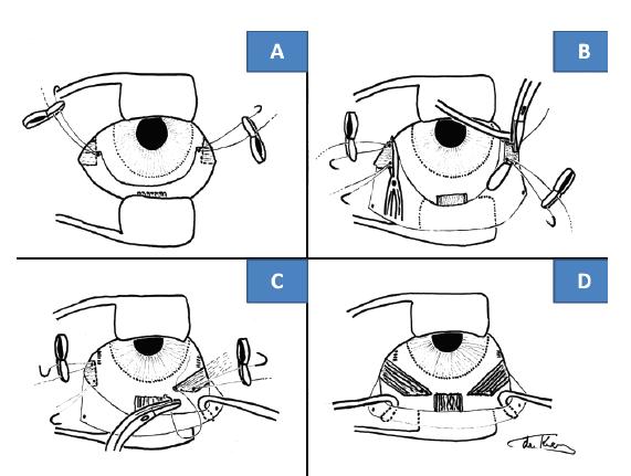 """Operační technika """"protisměrné"""" transpozice podle Knappa: rozsah nástřihu bulbární spojivky (A), fixace stehů a odstřižení horizontálních přímých svalů (B), fixace horizontálního přímého svalu u úponu dolního přímého svalu (C), zafixování obou horizontálních přímých svalů v úrovni úponu dolního přímého svalu (D)"""