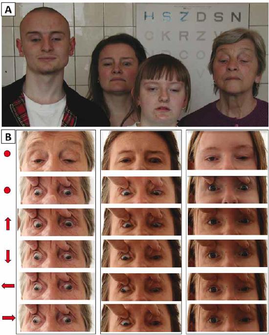 Dokumentace okohybné poruchy u 3 příslušníků rodiny s diagnózou kongenitální fibrózy zevních okohybných svalů. (A) Čtyři vyšetřovaní rodinní příslušníci při pohledu vpřed, nápadné je vynucené postavení hlavy se záklonem, u očí s ptózou vyhlazení orbitopalpebrální rýhy. (B) Různé pohledové směry jsou vyznačeny šipkou, přímý pohled vpřed kolečkem (bez a s pasivním zvednutím víček).<br> Fig. 1. Documentation of eye movement abnormality in 3 members of one family with congenital fi brosis of the extraocular muscles. (A) Four examined family members looking straight ahead with a marked compensatory backward tilting of the head (B) Different gaze positions are indicated by arrows; primary gaze position (with and without passive lid elevation) is indicated with a dot.