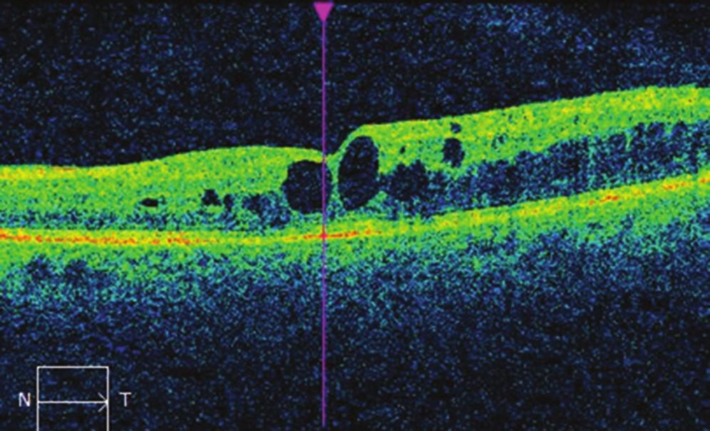 Nález na OCT na levém oku před léčbou mikropulzním laserem: cystoidní makulární edém, CRT 395 μm.