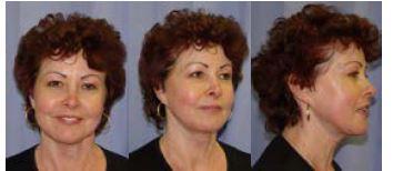 Obr. 5 Pacientka 2 roky po výkonu (disekce SMAS, agresivní mobilizace, lipografting 10 ml): čelní, šikmý a boční pohled. Patrný přetrvávající výrazný efekt operačního výkonu.