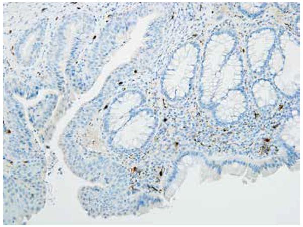 Pozitivní imunohistochemický průkaz kalretininu v anorektální junkci, negat-HN (200x).