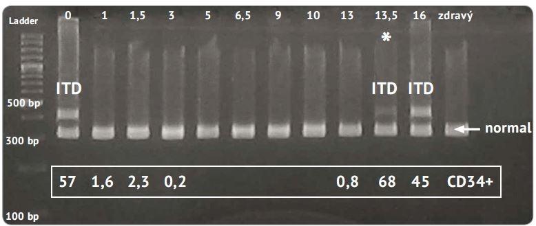 Elektroforeogram PCR fragmentov génu <i>FLT3</i> u pacienta s prechodom MDS do AML.
