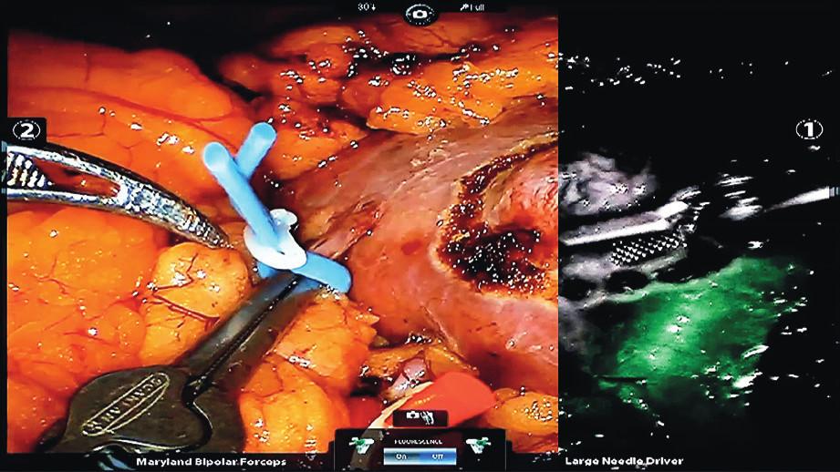 Zobrazení prokrvení ledviny pomocí fluorescenční kamery s použitím indocyaninové zeleně (tmavá oblast neprokrvená, zelená prokrvená)