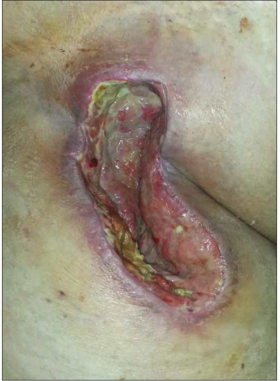 Sekundárně se hojící rána v pravém třísle u obézní pacientky po plastice femorální tepny (Szilagyi II, kultivačně Proteus a Staphylococcus aureus).<br> Fig. 1. Secondary healing of a wound in the right groin in obese patient after femoral artery patch angioplasty (Szilagyi II, wound culture: Staphylococcus aureus).