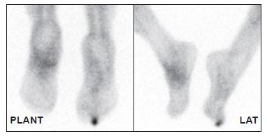 Distribuce značených leukocytů za 4 hodiny po aplikaci. Kromě nártu je patrná zvýšená akumulace také v prstu pravé nohy. Z obrázku je jasně patrné, že samotná scintigrafie neobsahuje anatomickou informaci, určení správného prstu tedy není pouze z obrazu možné.