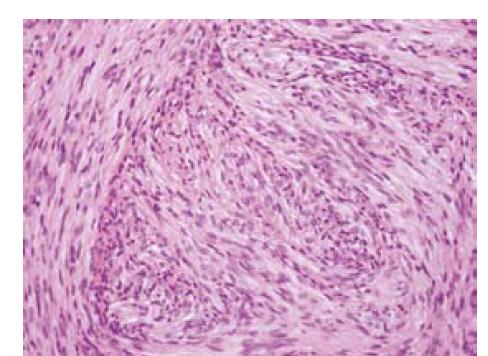 Obr. 11. Schwanóm, histologická mikrofotografia. Viditeľné oblasti Antoni A a Antoni B [46].<br> Fig. 11. Schwannoma, histological microimage. Visible Antoni A and Antoni B areas [46].