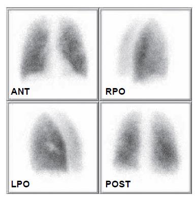 Obraz distribuce plicní perfuze na kontrolním vyšetření 17. 10. 2008 prokazuje kompletní rekanalizaci podobně jako při předchozí atace.