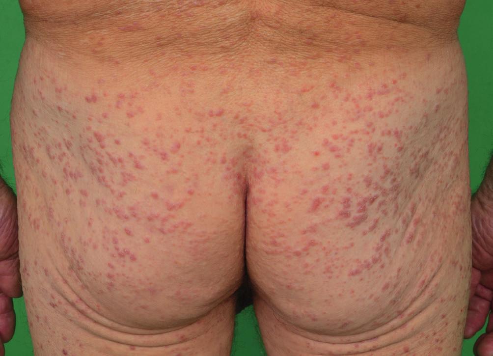 Kožní projevy indeterminate-cell histiocytosis v lednu 2016