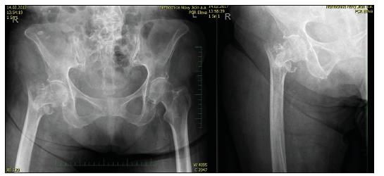 87letá žena s patologickou zlomeninou trochanterického masivu, úrazový RTG