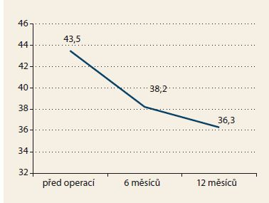 Index tělesné hmotnosti (BMI). Graph 2. Body mass index (BMI).