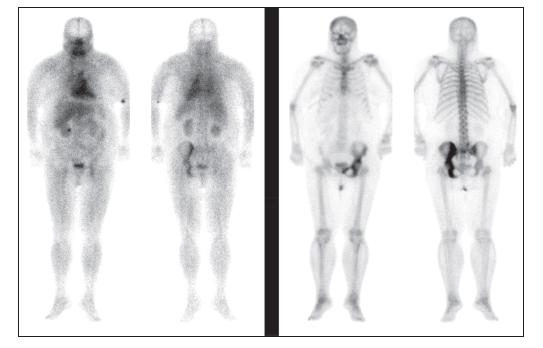 Obr. 3Ab Scintigrafie skeletu, celotělové obrazy, pohled přední a zadní. Vlevo 10 minut, vpravo 4 hod. po aplikaci. Je patrná výrazně zvýšená akumulace v levé polovině pánve