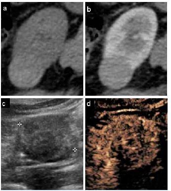 Karcinom ledviny – srovnání CT a CEUS.