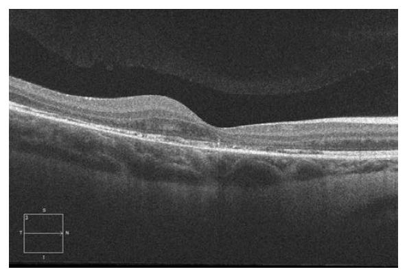 Spektrální HD OCT Lineární horizontální makulární sken po 3. intravitrálních aplikacích ranibizumabu (Lucentis) v dlouhodobém sledování (˃ 12 měsíců) se stabilním makulárním nálezem, bez další progrese