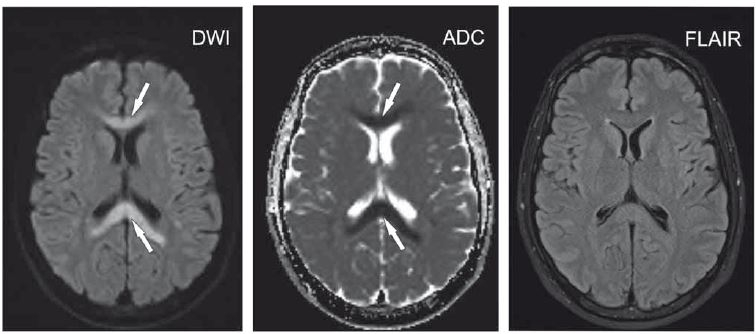 Pacient ve věku 24 let, před 3 dny začaly difuzní bolesti hlavy, krční páteře a kašel, poté i horečky a vyrážka na kůži. DWI hypersignální okrsek v corpus callosum s ADC hyposignálním korelátem (šipky). Na FLAIR obraze jen nevýrazné rozšíření corpus callosum beze změny intenzity signálu. Akutní diseminovaná encefalomyelitida.<br> ADC – aparentní difuzní koeficient; DWI – difuzí vážený obraz; FLAIR – inverzní zobrazení s potlačením signálu tekutiny<br> Fig. 4. A 24-year-old man with a 3-day history of diffuse headache along with cervical spine pain and cough; afterwards, fever and skin rash developed. DWI hypersignal areas in the corpus callosum with an ADC hyposignal corresponding area (arrows). On FLAIR image, only minimal widening of the corpus callosum is present without signal change. Acute disseminated encephalomyelitis.<br> ADC – apparent diffusion coefficient; DWI – diffusion-weighted image; FLAIR – fluid attenuated inversion recovery