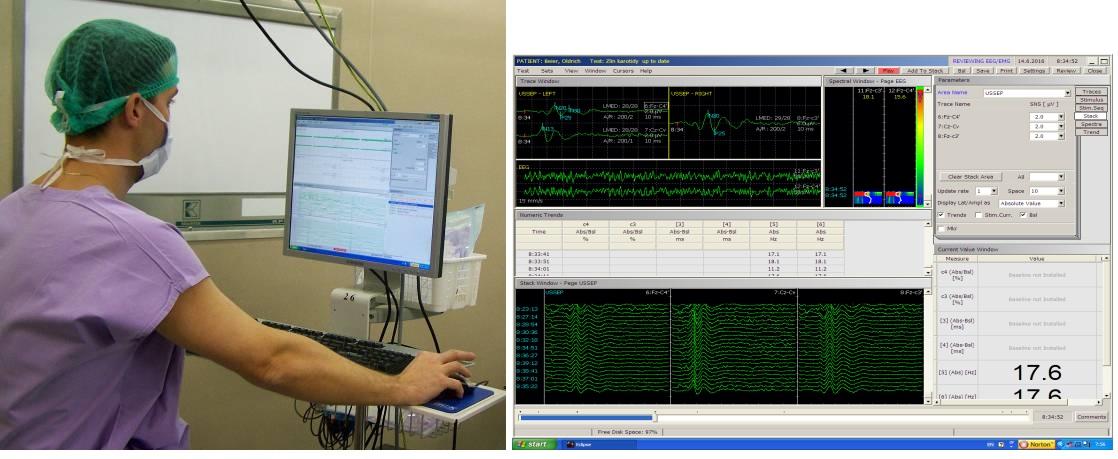 Obr. 4 A,B Peroperačný neuromonitoring.<br> Fig. 4 A,B Intraoperative neurophysiological monitoring.
