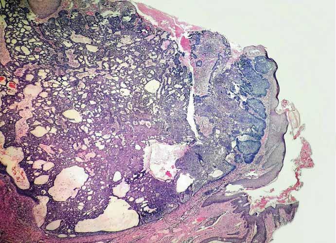 Histologický obraz nodulárneho bazocelulárneho karcinómu.