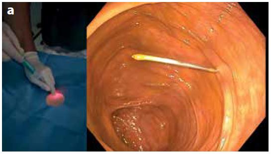 a: Punkce céka jehlou obsahující kotvicí systém (vlevo); koloskopický pohled (vpravo)<br> Fig. 2a. Cecal puncture with a needle containing an anchoring system (left); colonoscopic view (right)