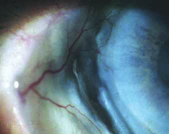 Semi-perforation of scleritis in untreated GPA