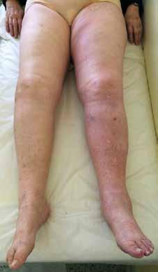 Akutní proximální HŽT LDK postihující v. iliaca externa, v. femoralis communis, v. femoralis, v. poplitea a v. fibularis. Končetina je oteklá od třísla po nárt s patrným temnějším zbarvením kůže ve srovnání s PDK