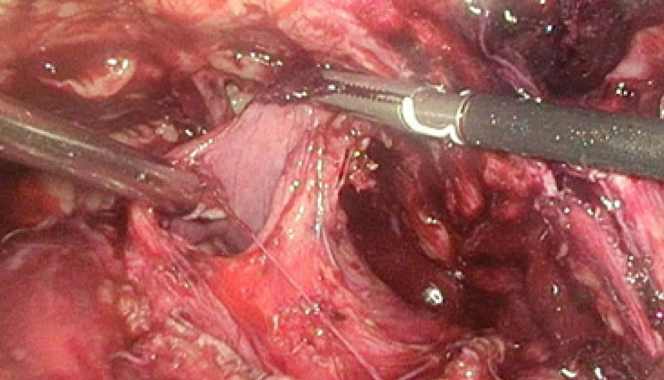 Laparoskopie – ruptura pravé strany močového měchýře<br> Fig. 5. Laparoscopy – rupture of the right side of the urinary bladder