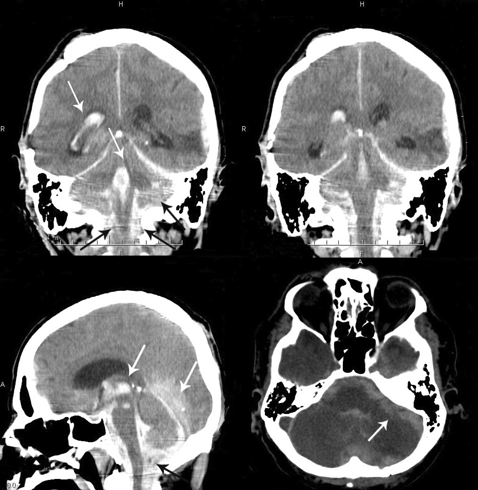A – CT scan (coronal section), intraventricular hemorrhage in the right