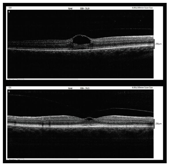 Entry OCT image (7/2017, upper – right eye, lower – left