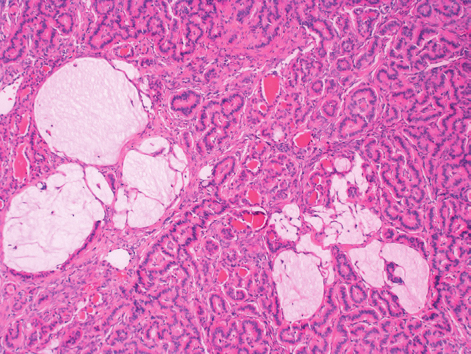Strumal carcinoid of the ovary – report of two cases and