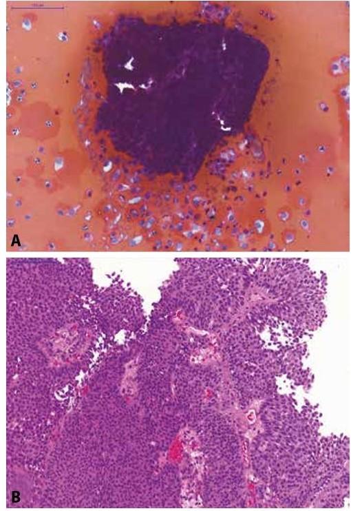 Pacientka s makroskopickou hematurií a dilatací dutého systému levé ledviny na USG.<br> (A) Selektivní výplachová cytologie z levého močovodu; na krevnatém pozadí jsou urotelie z hlubších vrstev sliznice (osamoceně i v plachtovitých shlucích) a 3D trsy urotelií (bez fibrovaskulárního stromatu) s minimálním morfologickou alterací; kategorie: NHGUC, avšak přítomnost low-grade léze je vysoce suspektní.<br> (B) Definitivní histologický materiál od pacientky (TURT s odstupem dvou měsíců po cytologii); zastižen neinvazivní exofyticky rostoucí uroteliální karcinom, dle WHO 1973 grade 1, dle WHO 2016 low-grade neinvazivní papilární uroteliální karcinom.