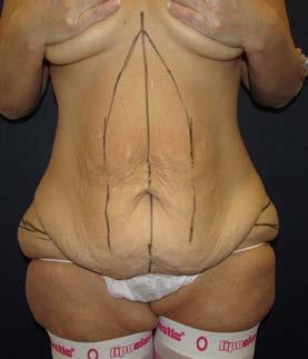 Lower body lifting, 50letá pacientka po redukci hmotnosti o 70 kg – předoperační nákres zpředu