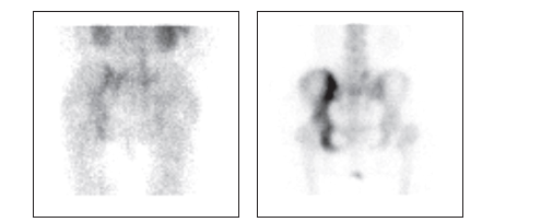 Obr. 3Aa Scintigrafie skeletu, obraz tkáňové perfuze a časné kostní fixace vlevo a pozdní kostní akumulace vpravo, pohled zadní. Je patrná zvýšená perfuze a výrazně zvýšená kostní přestavba v levé polovině pánve.