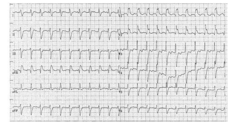 Kvízová EKG křivka<br> Popis EKG křivky je uveden v textu