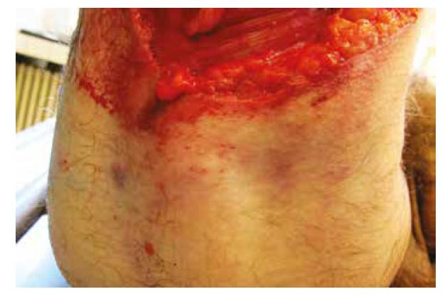 Pohľad na odreninu kože na zadnej ploche pravého stehna nad amputačnou líniou.