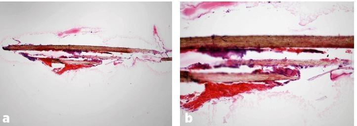 a, b. Histologický obraz lidského vlasu – přehledová mikrofotografie (x40, HE) (a), a detailní záběr téhož vlasu (x100, HE) (b). Foto prof. MUDr. J. Laco, Ph.D., Fingerlandův ústav patologie LF UK a FN v Hradci Králové