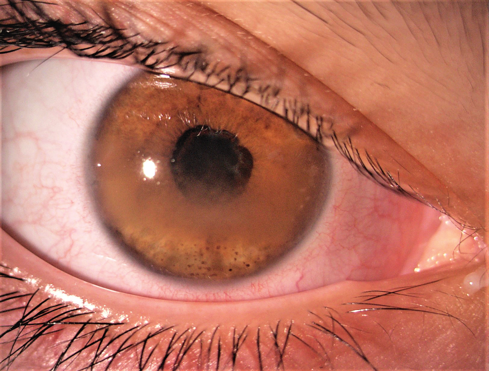 Uveitida se zonulární keratopatií, zadními synechiemi a kataraktou.<br>Fig. 1. Complicated uveitis with band kerathopathy, posterior synechiae and cataract.