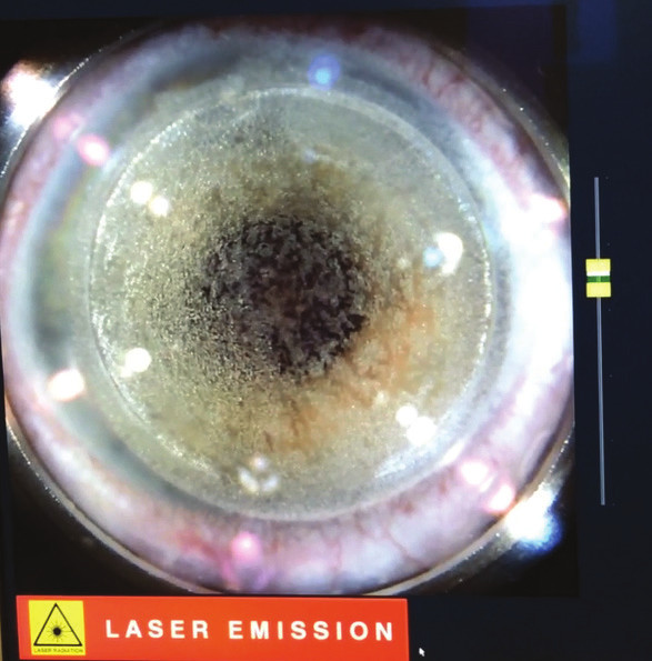Creation of corneal flap with femtosecond laser