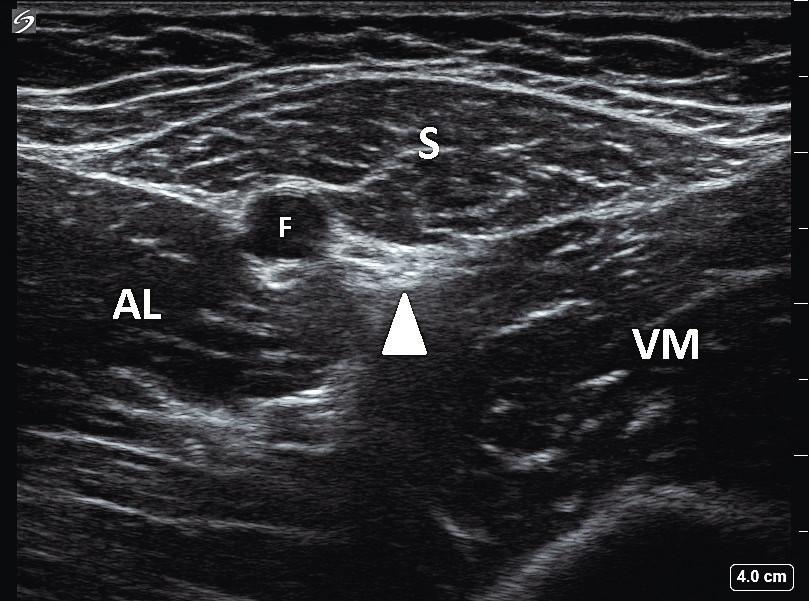 Ultrazvukový obraz stehna LDK v oblasti femorálního trojúhelníku: S – m. sartorius, AL – m. adductor longus, VM – m. vastus medialis, F – femorální tepna, bílý trojúhelník označuje interfasciální prostor, ve kterém jsou nervus saphenus a nervus vastus medialis