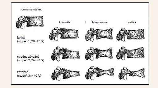 Obr | Semikvantitatívne hodnotenie zlomenín stavcov podľa Genanta