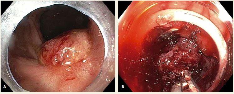 """A. LRN v jizvě po EMR v rektu; B. neúspěšný pokus o vtažení fixované léze do """"capu"""". <br>Fig. 2. A. LRN in a post-EMR scar in the rectum; B. an unsuccessful attempt to pull the lesion into the cap."""