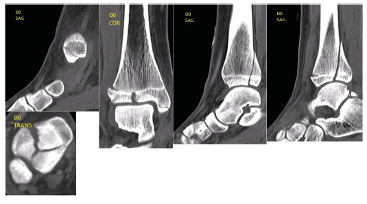 HRCT examination of the malleolus was performed at our department; based upon the findings, we determined the diagnosis of triplane four-fragment fracture