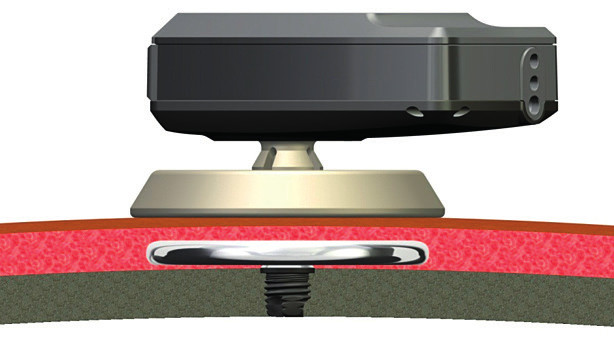 Baha Attract®. Ve zvukovém procesoru je zdroj vibrací, které přecházejí transkutánně do vnitřního magnetu umístěného pod intaktní kůží a měkkými tkáněmi. Vnitřní magnet je pevně spojen s oseointegrovaným implantátem. (Zdroj: Cochlear, Sydney, Austrálie.)