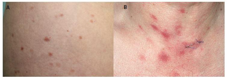 Urticaria pigmentosa a) Červenohnědé makulopapuly o velikosti několika mm<br> b) makulopapuly o velikosti několika cm